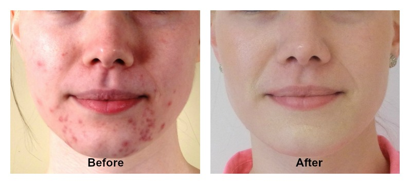 Taking Care Of Acne Prone Skin